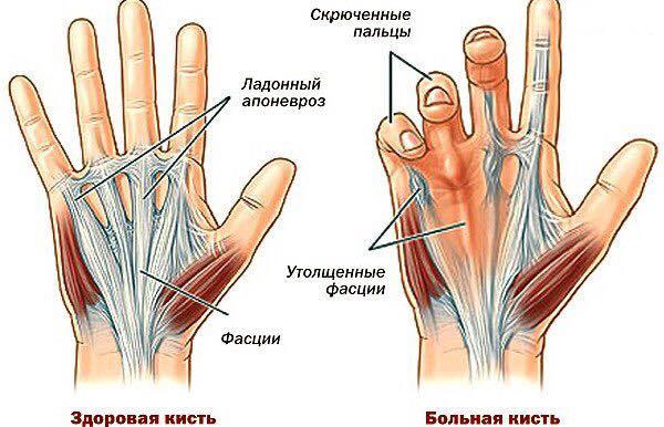 Массаж при контрактуре суставов кистей рук топинамбур лечебные свойств для суставов