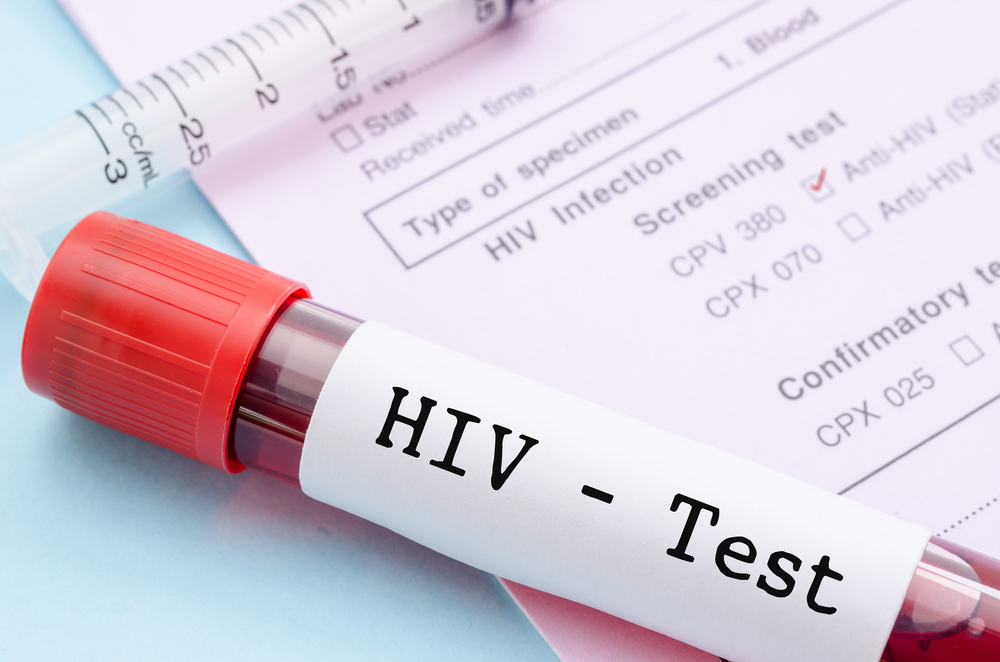 Горздрав: в Екатеринбурге не объявляли эпидемию ВИЧ