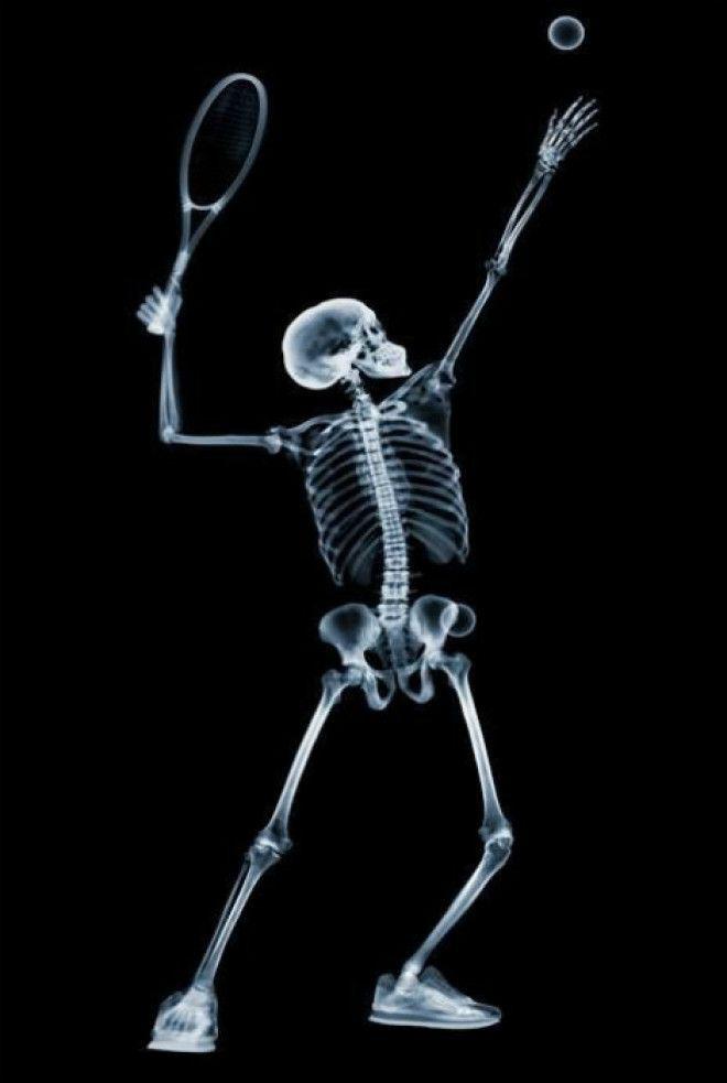 Теннисист в рентгеновской камере