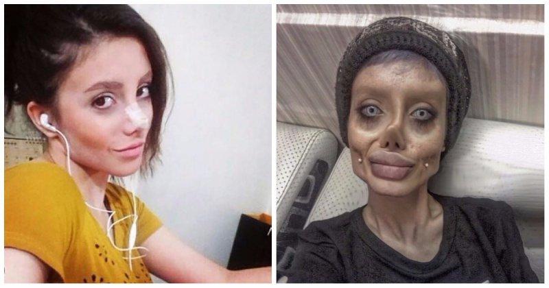 Иранка горела желанием превратиться в Анджелину Джоли