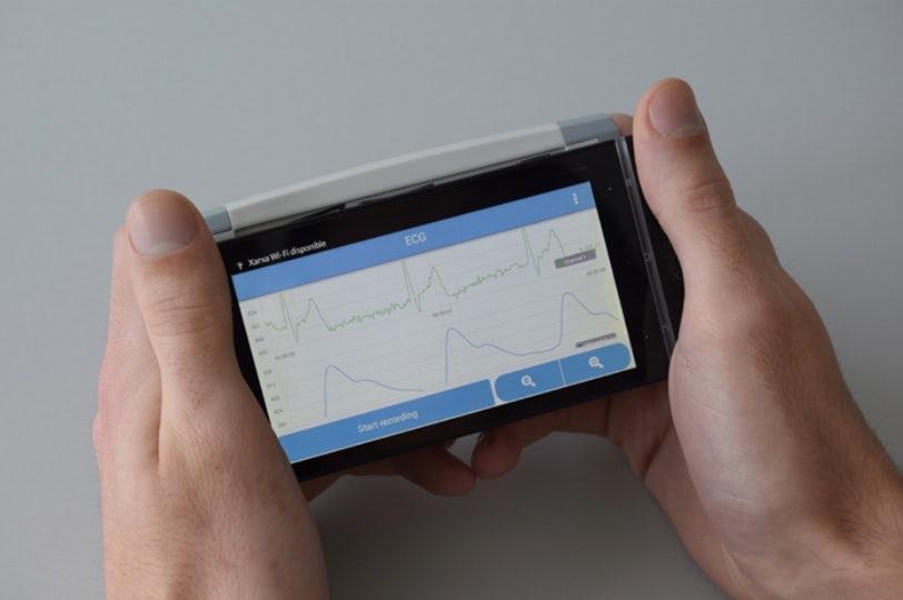 В Испании представили мобильный электрокардиограф