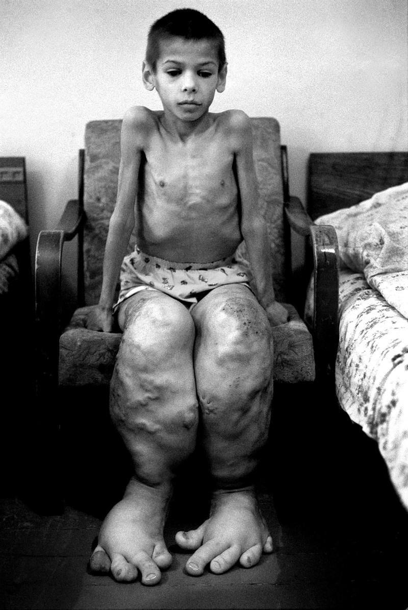 Последствия аварии на Чернобыльской АЭС. было, история, фото