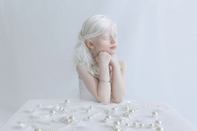 """""""Фарфоровая красота"""": фотопроект о неземном очаровании людей-альбиносов"""