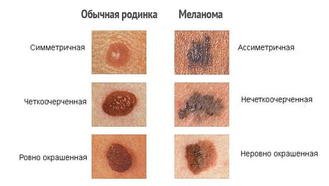 9 самых опасных и незаметных болезней болезни,здоровье,медицина