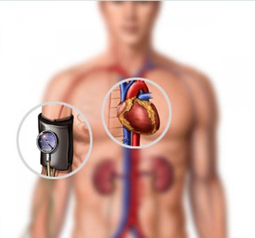 """""""Почему вредно лечить гипертонию"""" гипертония,гипотезы,лечение"""