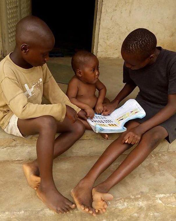 Через 8 месяцев он начал набирать вес и крепнуть буквально на глазах дети, доброта спасет мир