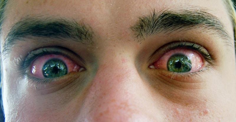 Глаза при марихуане как сушить марихуану дома