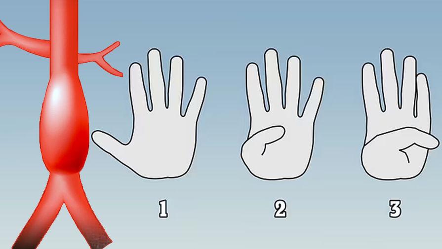 Палец покажет: как заранее распознать у себя аневризму аорты здоровье,медицина,тест