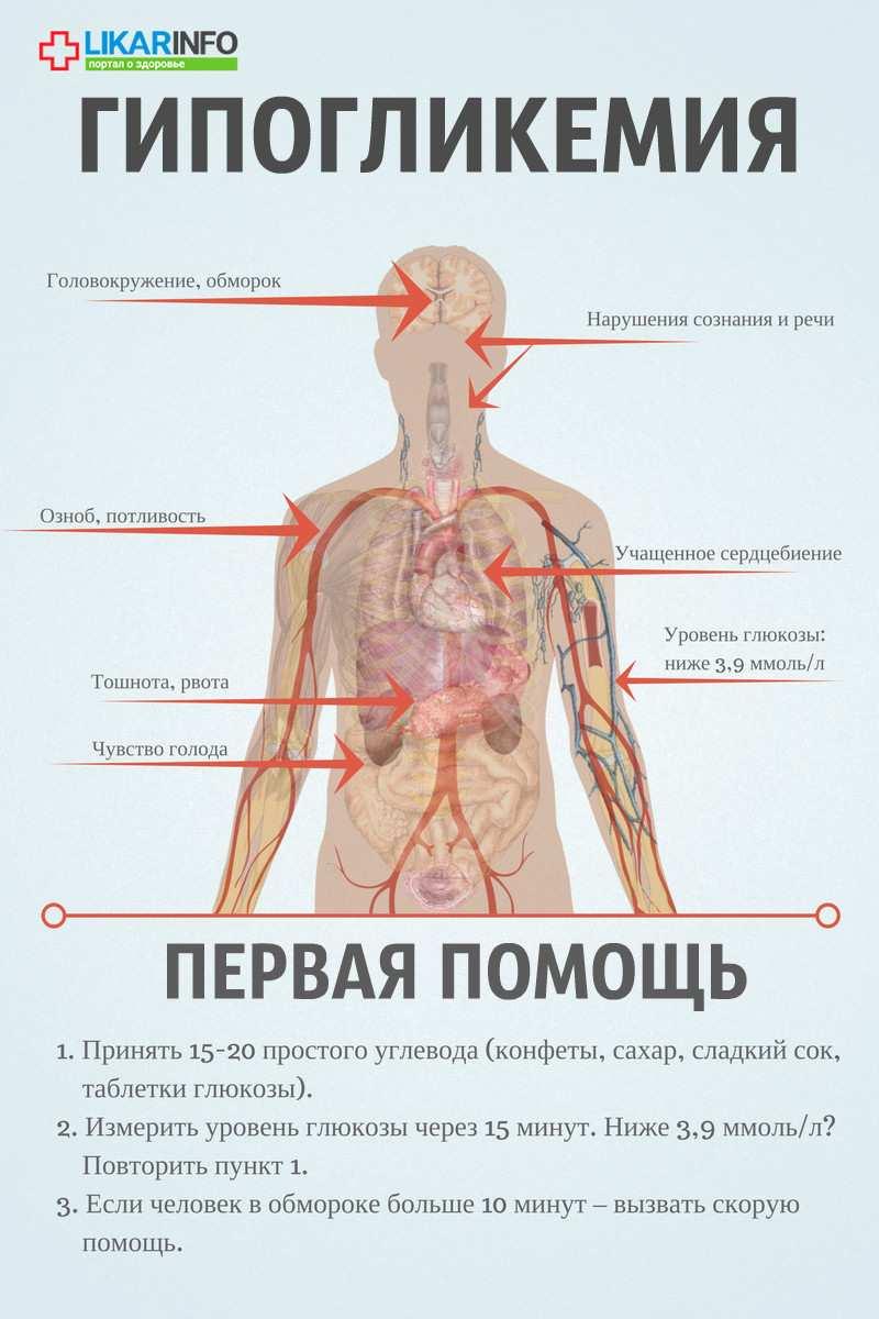 Симптомы гипогликемии - изображение №1