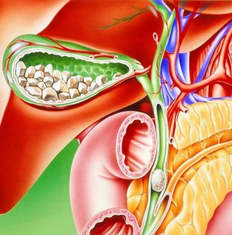 Болезнь гурманов: Советы восточной медицины при холецистите