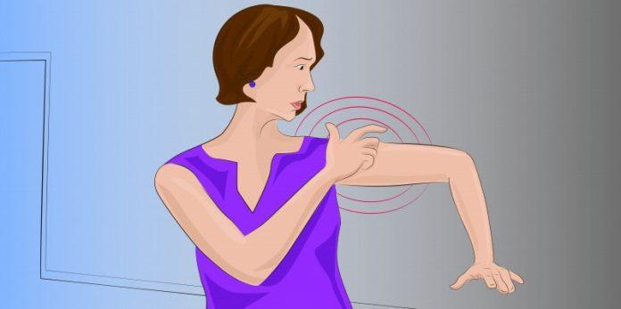 Симптомы инсульта, о которых женщины должны знать