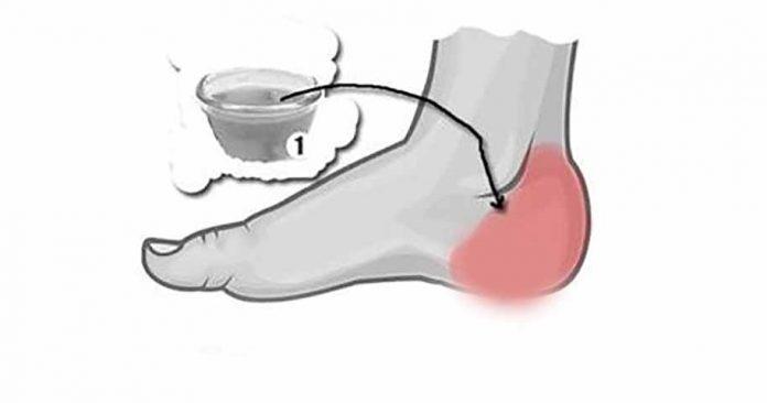Как получить облегчение от боли в пятке. Просто и эффективно