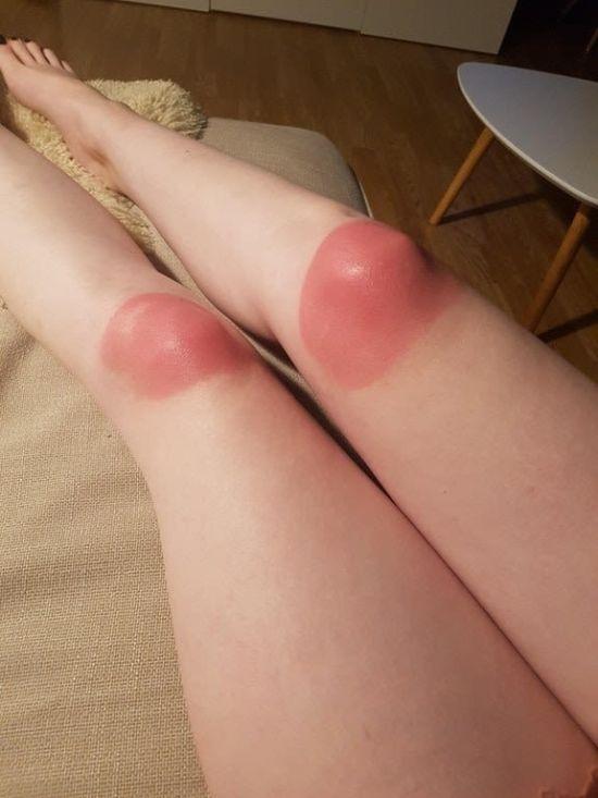 Почему не стоит носить дырявые джинсы в жару