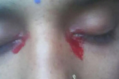 Женщина заплакала кровавыми слезами из-за редчайшей аномалии Из жизни