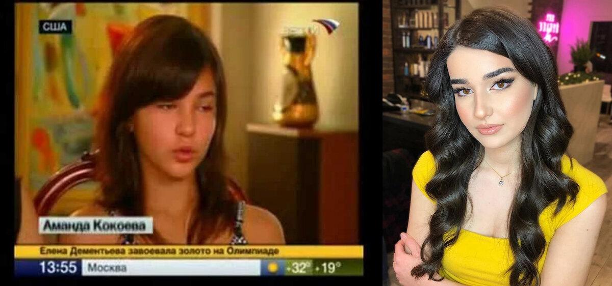 Храбрая Аманда. Кем выросла осетинская девочка, рассказавшая Америке правду об августе 2008-го