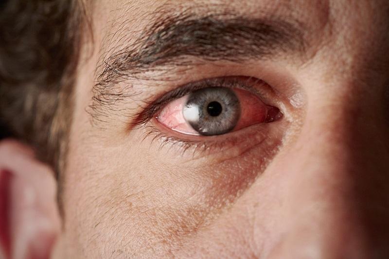 Эта ежедневная привычка провоцирует рак, ожирение, приводит к слепоте и…