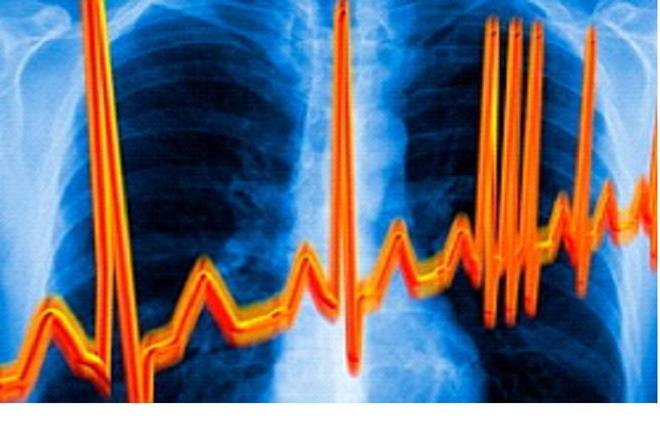 Рецепты народной медицины от сердечной аритмии
