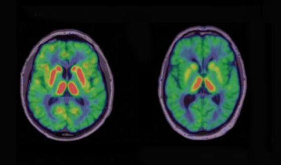 Слева: мозг здорового человека. Справа: мозг больного ПаркинÑоном