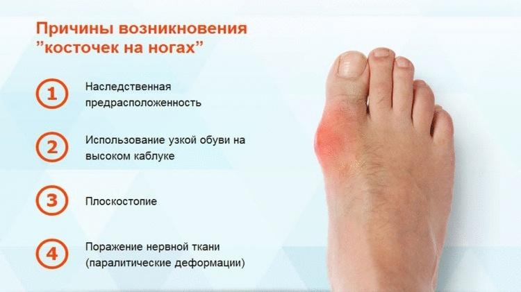 Косточка на ноге: как она образуется и как от нее избавиться