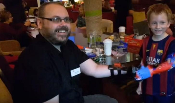 Человек, рожденный без руки, создает свободные протезы для детей