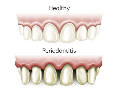 Народное лечение пародонтоза зубов идесен