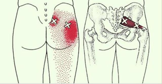 2 трюка, которые разблокируют седалищный нерв и облегчат боль в течение нескольких минут