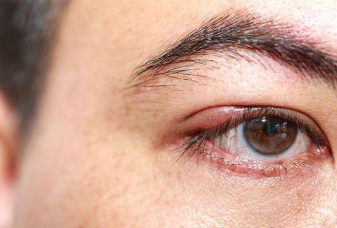 Ячмень на глазу как лечить быстро дома