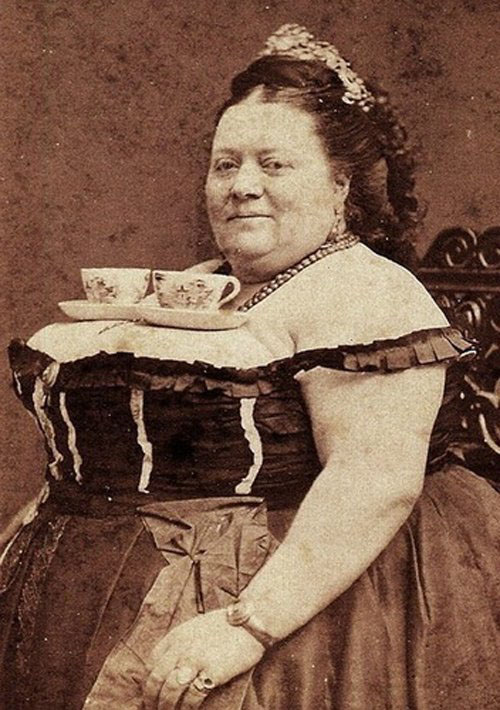 Увеличение груди 100 лет назад. Как это было?