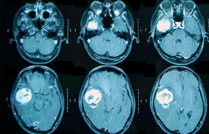 Картинки по запроÑу Опухоли головного мозга