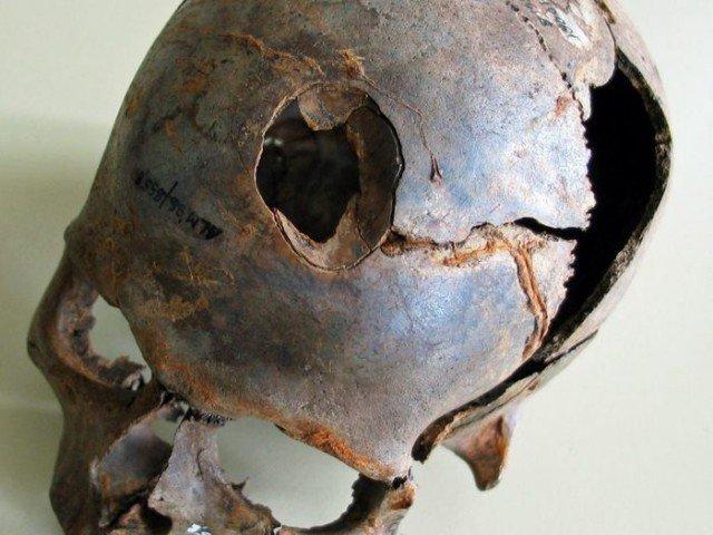 А вот этому обладателю черепа, проломили череп дубиной, напоминающей клюшку. Остатки таких дубин так же были найдены. история, мумии, наука, скелеты