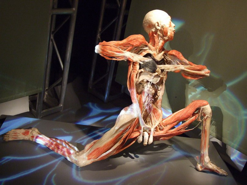 Скандальный Музей человеческого тела MeMu в Берлине