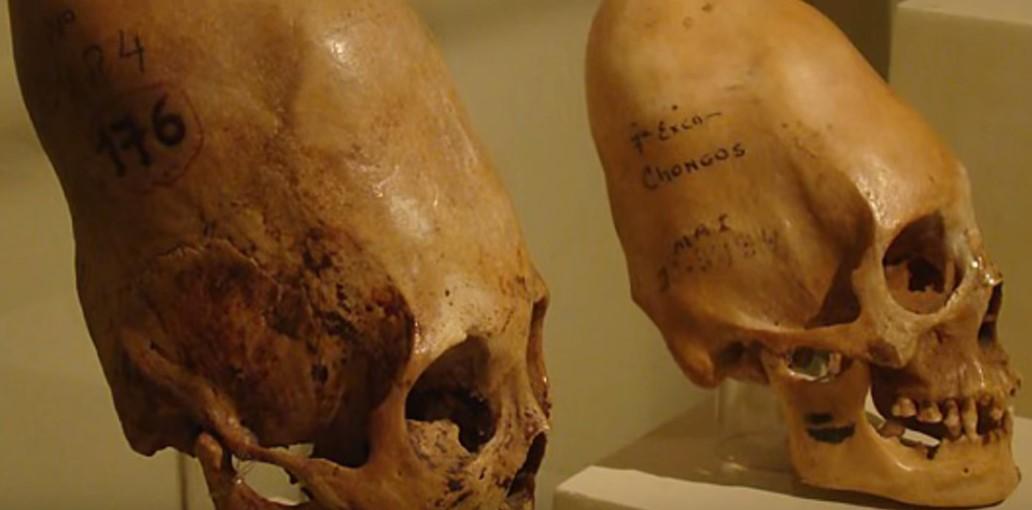 Удлиненные черепа
