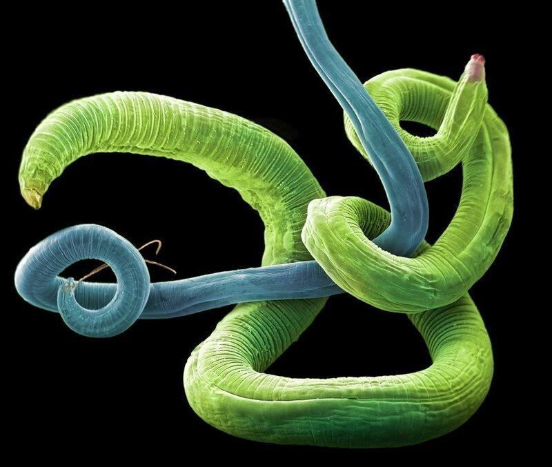 Мужская и женская особи Contracaecum rudolphii жизнь, интересно, под микроскопом, познавательно, фотограф