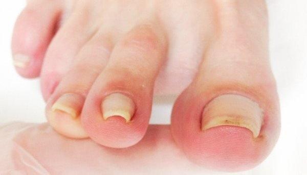 Вросший ноготь. Народные методы лечения вросшего ногтя
