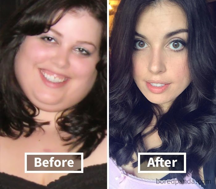 Лицо до и после похудения фото до и после.