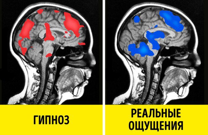 15 научных фактов о гипнозе, которые отличают его от любых эзотерических практик гипноз,наука,факты