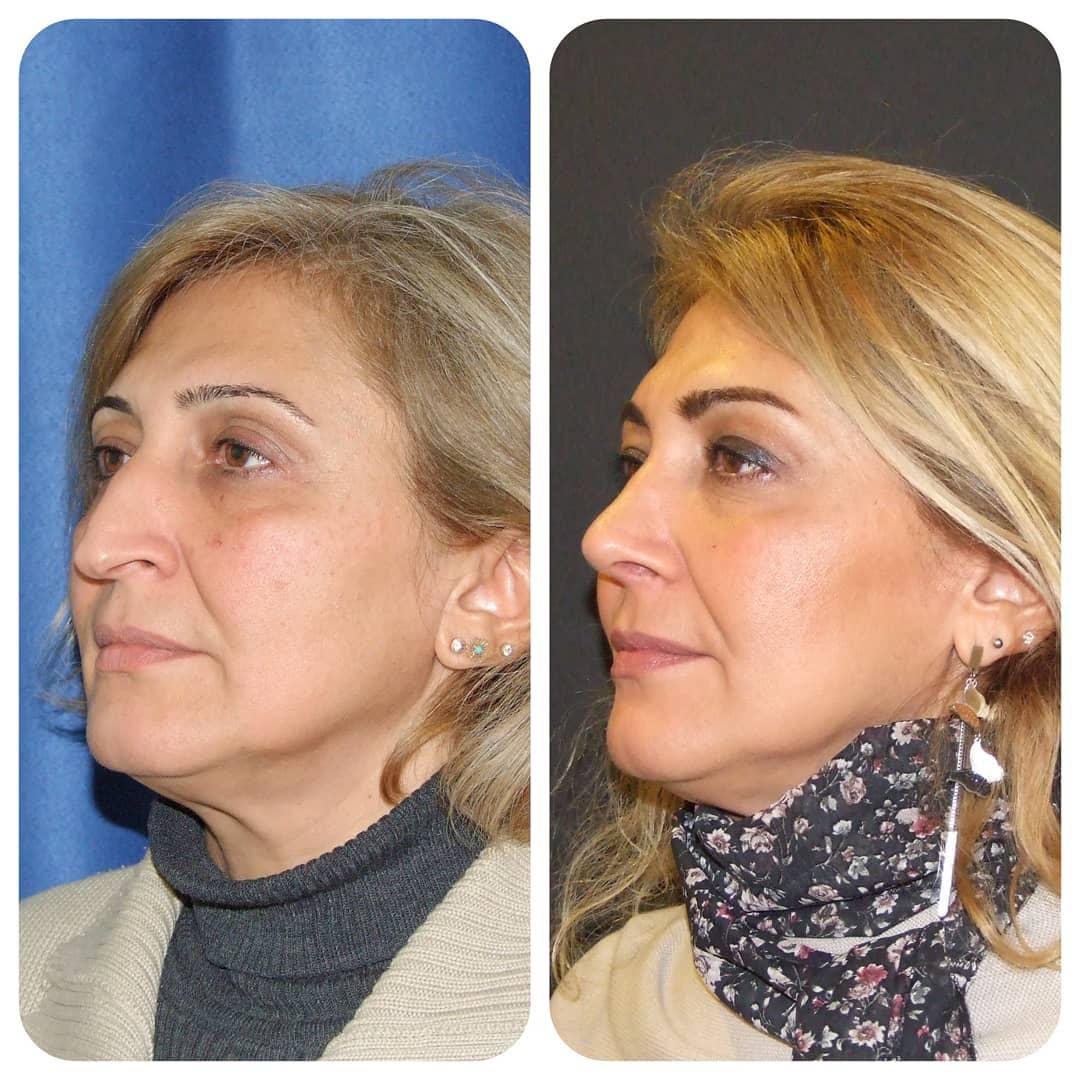 часто чудеса пластической хирургии фото до и после его основан