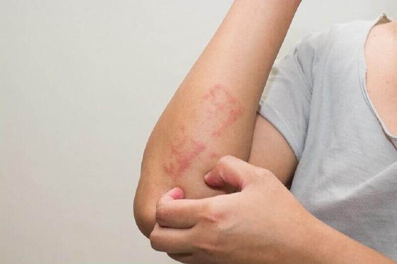 ВАЖНО! 16 признаков лейкемии, о которых необходимо знать