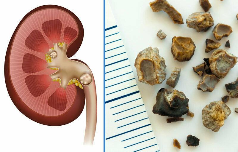 Как растворить камни в почках естественным путем здоровье,камни в почках,полезные продукты,почки,природные средства