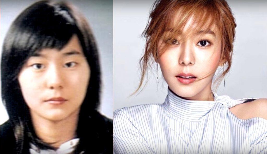 фотографии корейских звезд до и после пластики начинается
