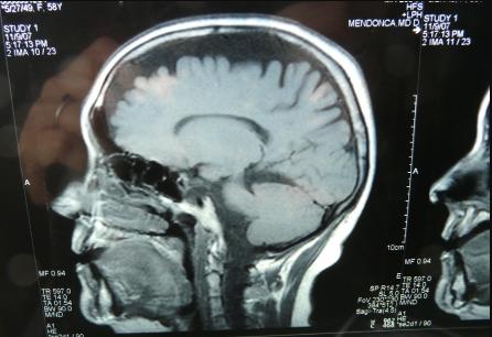 """У дипломатов США выявили повреждения мозга после """"акустических атак"""" на Кубе"""