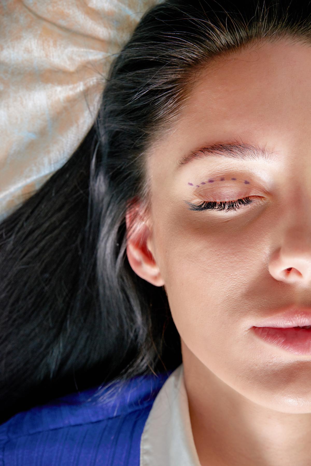 Блефаропластика: кому и когда ее надо делать? блефаропластика,красота,пластическая хирургия