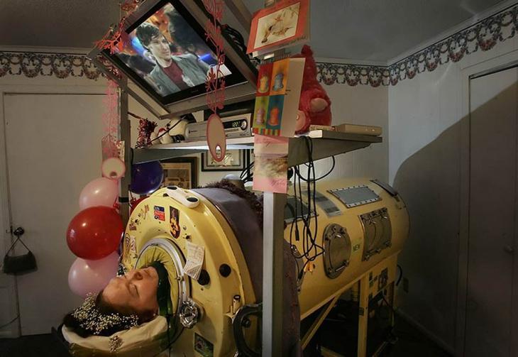Жизнь в «танке»: женщина провела почти 60 лет в аппарате вентиляции легких