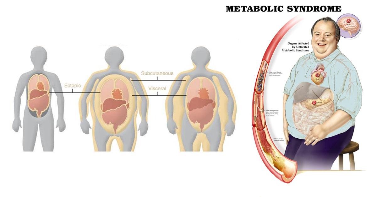 Метаболический синдром.Что это?
