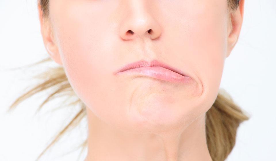 Неврит лицевого нерва у взрослых болезни,здоровье,неврит лицевого нерва