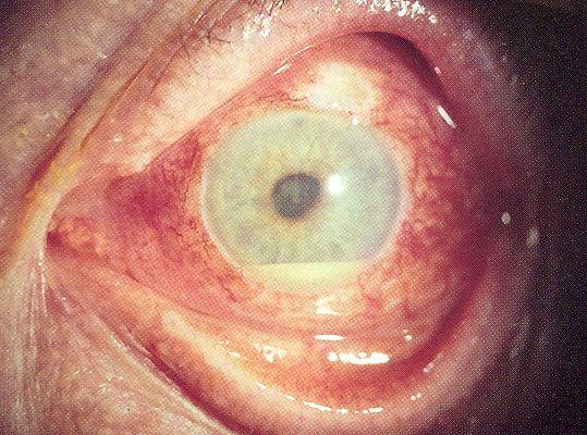 Самые тяжелые ситуации в офтальмологии  болезни,здоровье,здоровье глаз,медицина