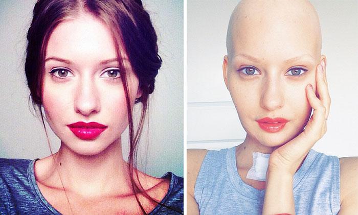 Врачи сказали модели сделать аборт после того, как ей удалили 95% челюсти из-за рака, — и вот что она сделала