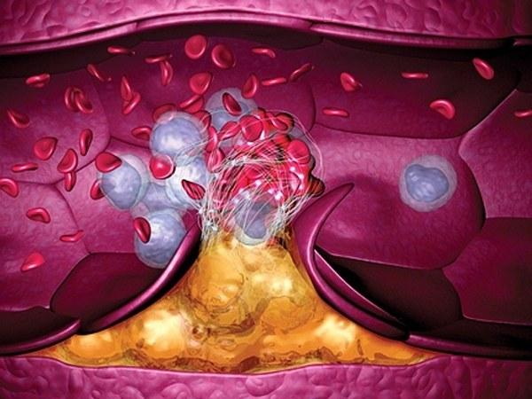 Важные признаки что у вас появились тромбы в кровеносных сосудах