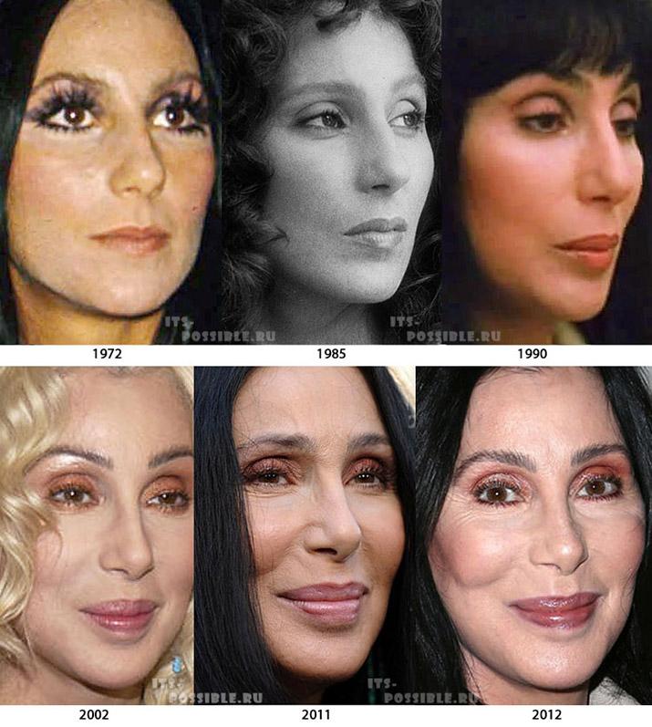 Шер певица фото до и после пластики