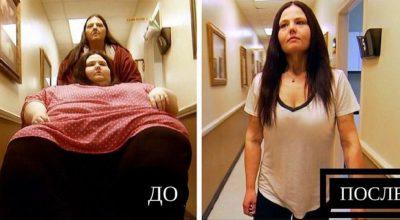Раскрыта диета, которую прописывает доктор Назардан пациентам из программы «Я вешу 300 кг»